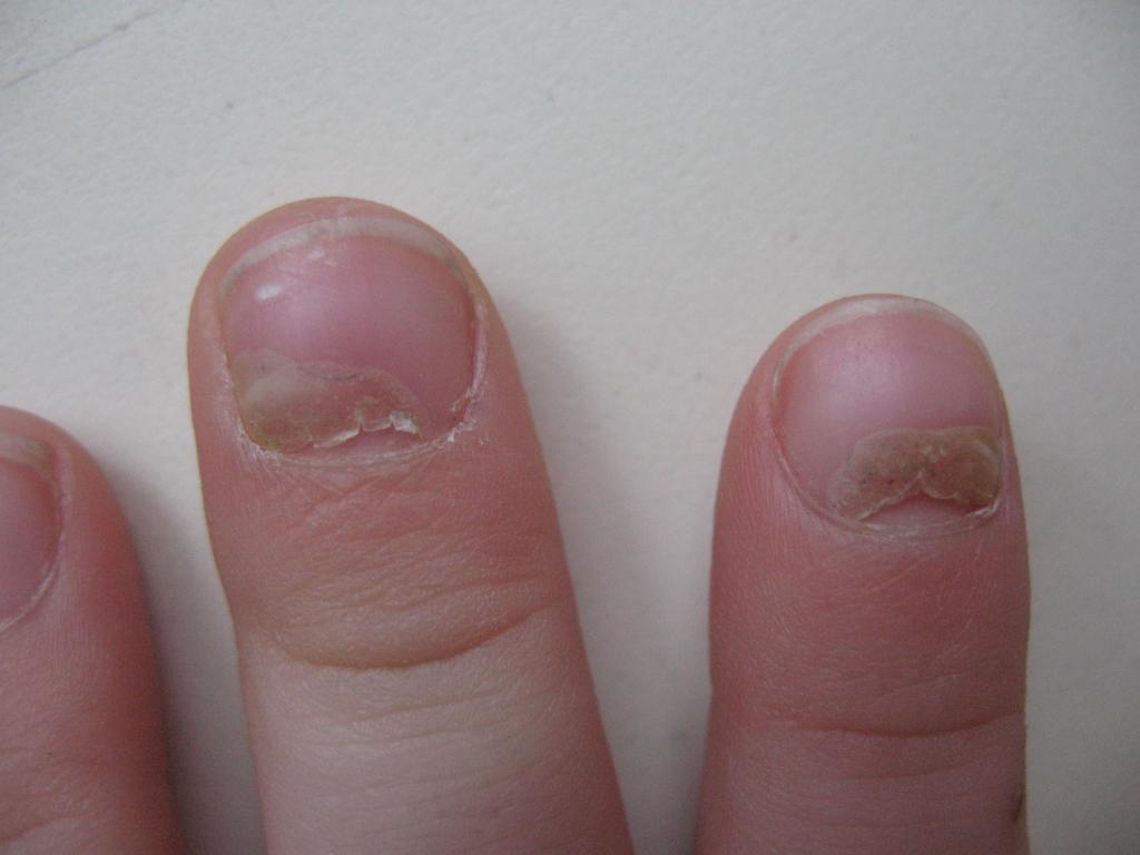 Ногти на руках слезают